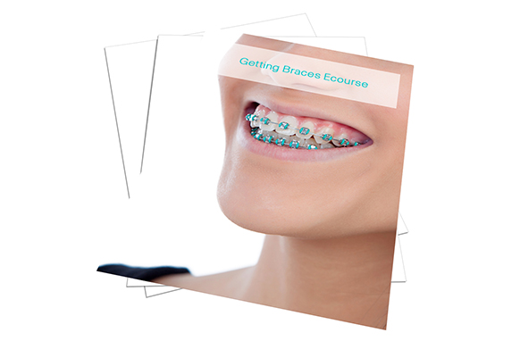 Getting Braces Ecourse